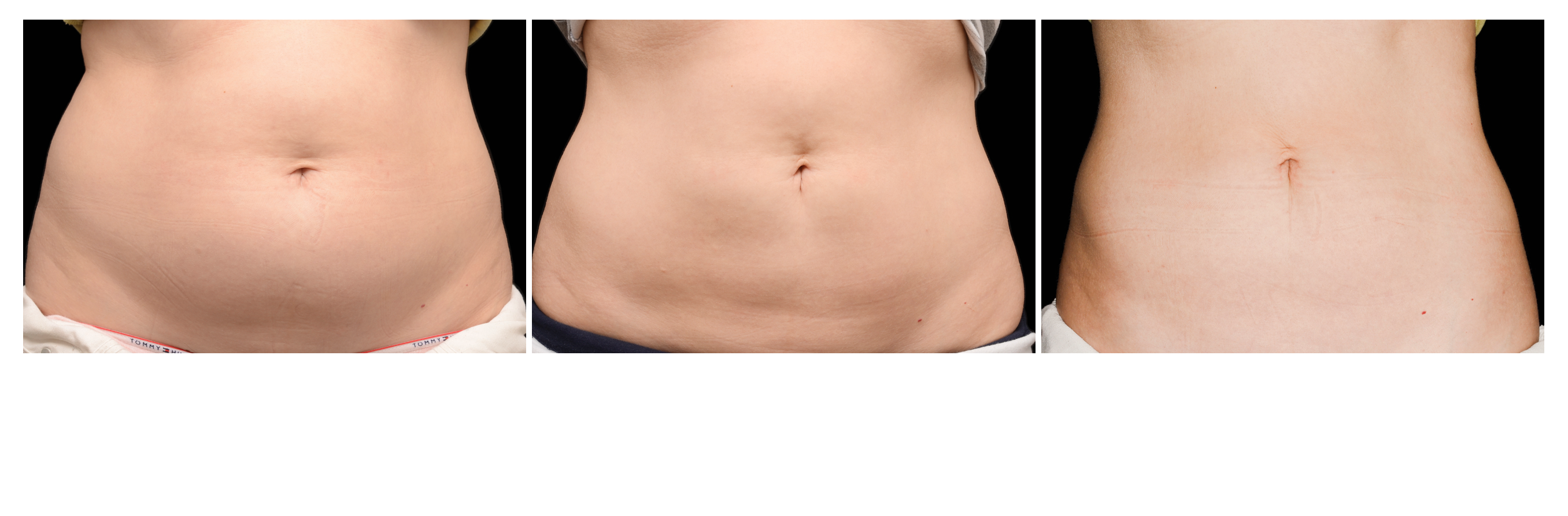 before and after CoolSculpting sessions