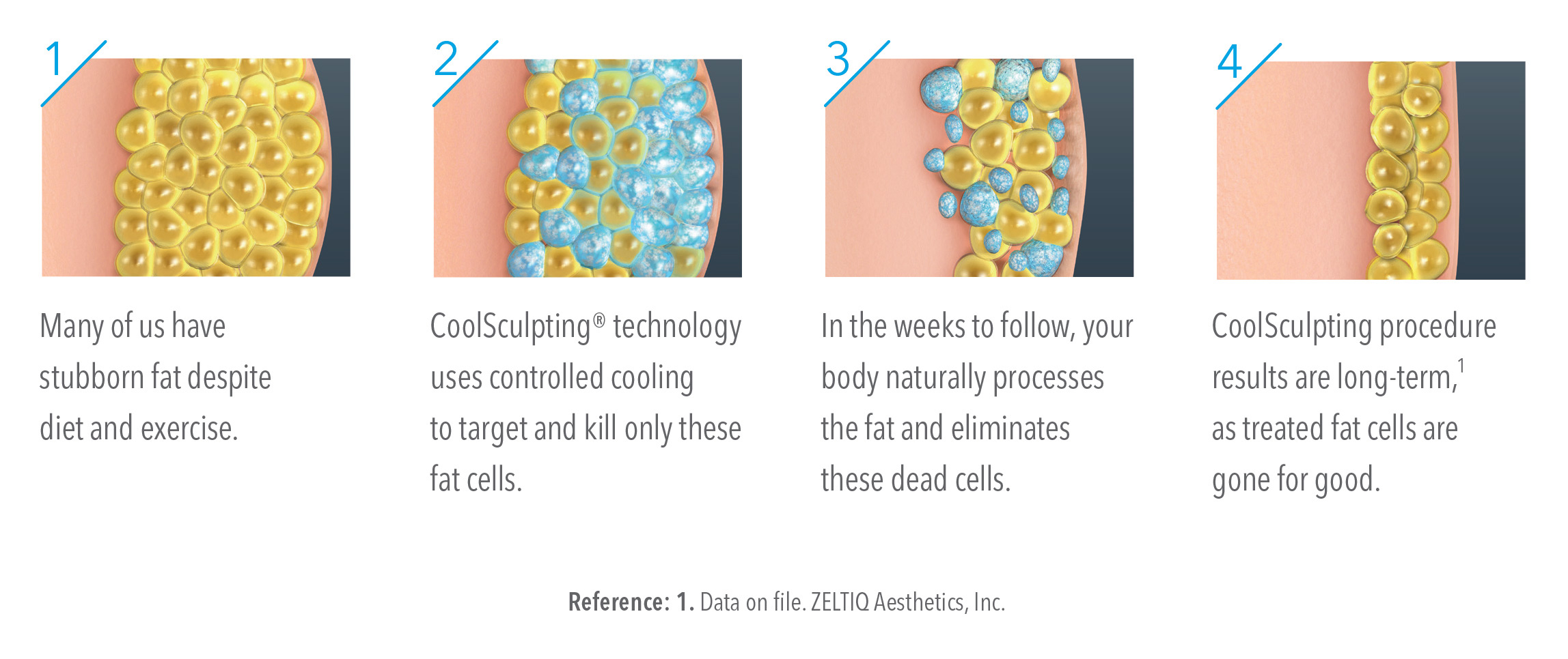 Illustration of the CoolSculpting process.